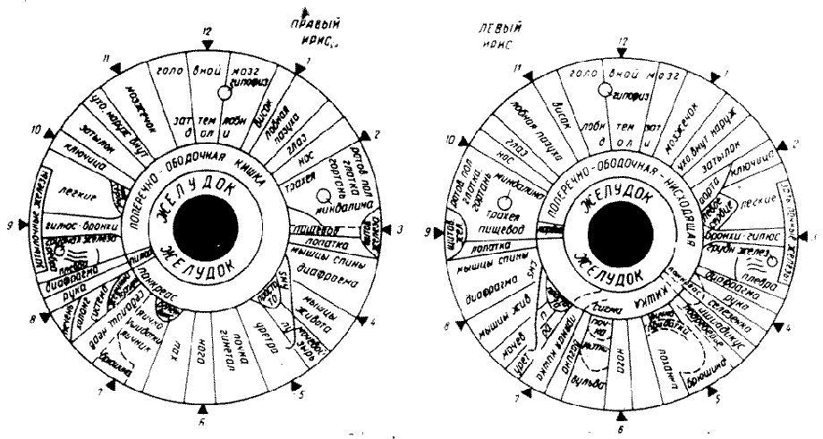 Иридодиагностика схема радужной оболочке глаза 491
